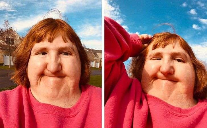 """""""Lascia stare, sei brutta"""" ma grazie ai selfie diventa modella a New York. La storia di Melissa Blake"""